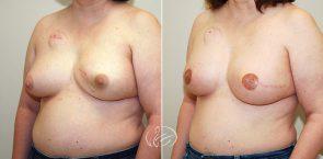 breast-reconstruction-01b-thor