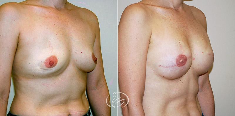 breast-reconstruction-02b