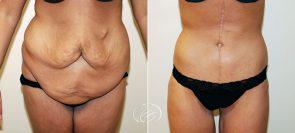Tummy Tuck & Thigh Lift