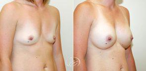 breast-augmentation-12258b-thors
