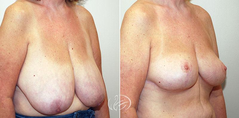 breast-reduction-12272b-thors