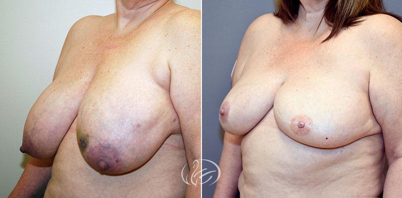 breast-reconstruction-12583b-thors