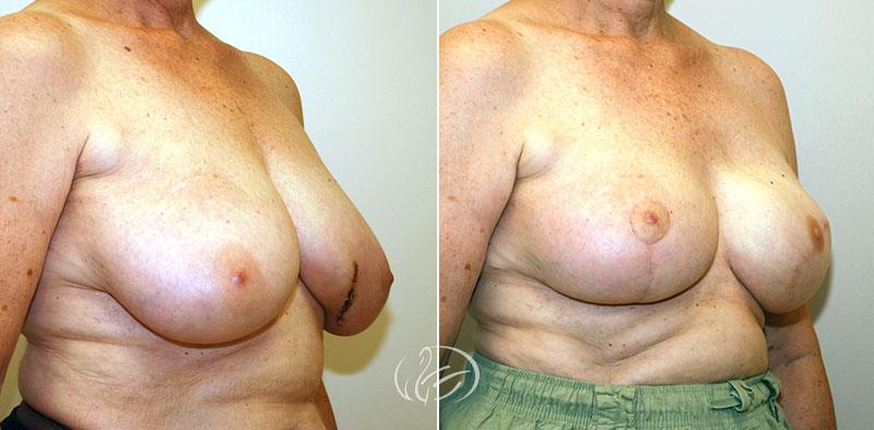 breast-reconstruction-12711b-thors