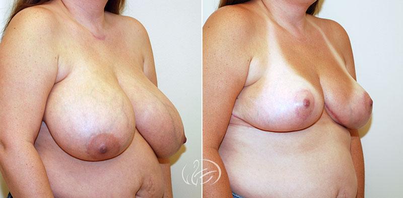 breast-reduction-12607b-thors