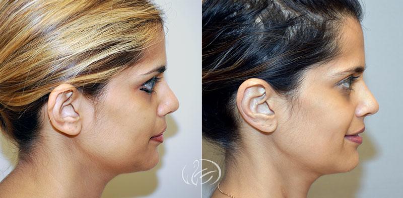 ear-pinning-12614c-thors